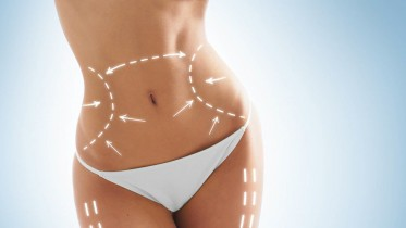Liposukce břicha – zkušenosti